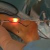 Traitement des tendinopathies calcanéennes : endoscopie